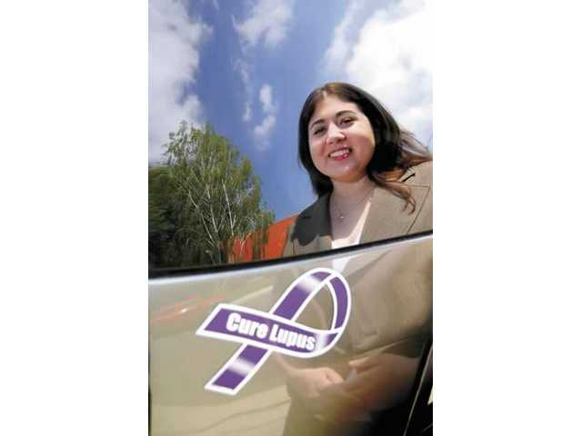 COC student fights for Lupus awareness