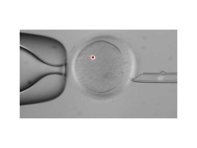 Oregon scientists make embryos with 2 women, 1 man