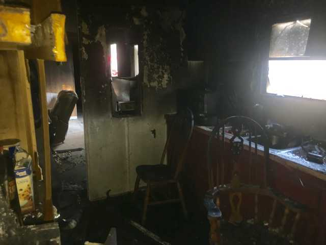 Long County man injured in fire