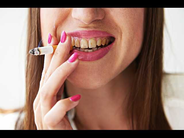 Symptoms of oral cancer you should never ignore
