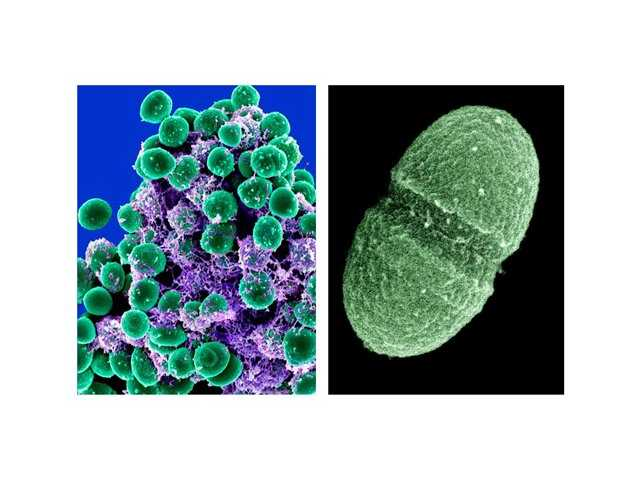 From left, a clump of Staphylococcus epidermidis bacteria (green) in the extracellular matrix, which connects cells and tissue, taken with a scanning electron microscope, showing. At right, undated handout image provided by the Agriculture Department showing the bacterium, Enterococcus faecalis, which lives in the human gut, is just one type of microbe that will be studied as part of NIH's Human Microbiome Project.
