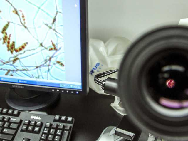 In this Oct. 12 photo, a closeup view through a microscope and magnified on the computer screen shows a meningitis-causing fungus  at the Centers for Disease Control and Prevention in Atlanta.