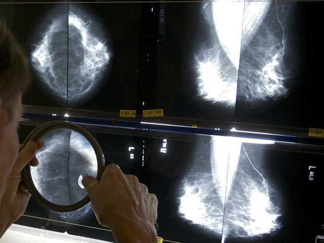 In thisMay 6, 2010, photo, a radiologist uses a magnifying glass to check mammograms for breast cancer in Los Angeles.