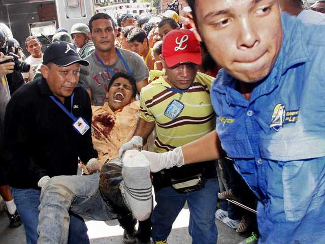 An injured prison inmate is carried into the hospital in Barquisimeto, Venezuela.