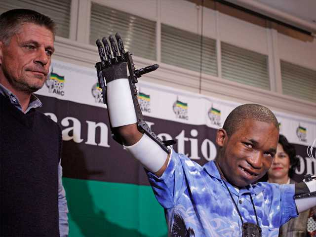 In this Aug. 16 file photo, carpenter Richard van As, left, stands with Flippie Engelbrecht, right, after fitting Engelbrecht with Robohands, in Cape Town, South Africa. Van As a South African carpenter developed the plastic hands after losing four fingers to a circular saw two years ago.