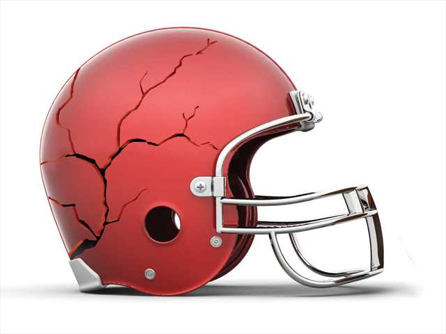 An examination of concussions in SCV football