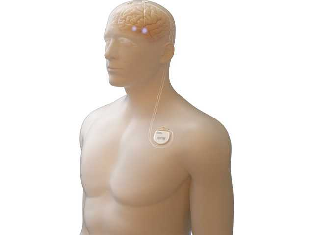 A dummy demonstrates Boston Scientific's deep brain stimulation system to treat Parkinson's disease.