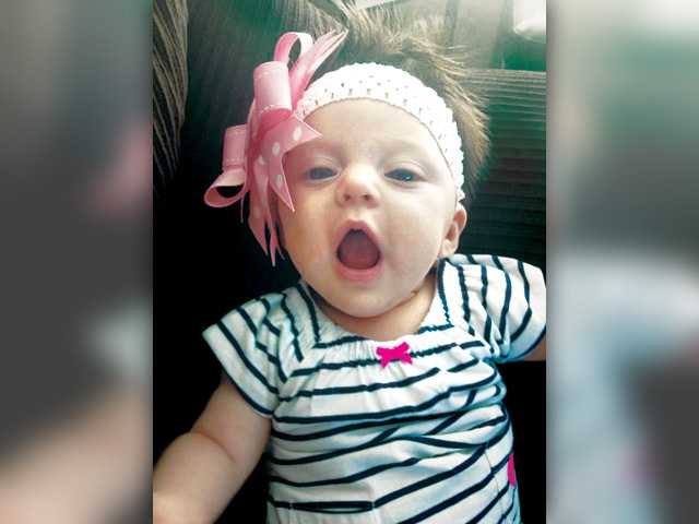 Baby Brooklyn Hernandez was born with congenital cystic adenomatoid malformation and requires surgery.
