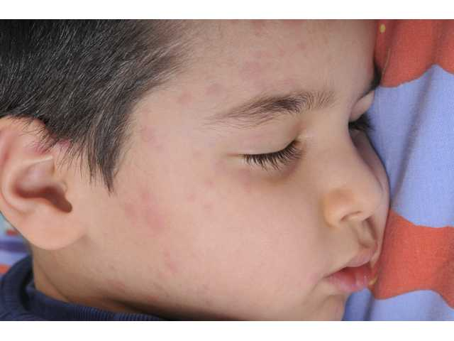 Measles 101: Signs, symptoms and prevention
