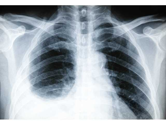Pleurisy: the lung condition that mimics a heart attack