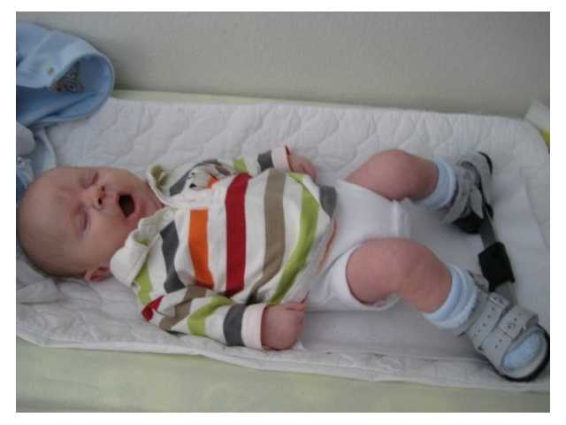 Mother of son with clubfoot shares story in honor of awareness month