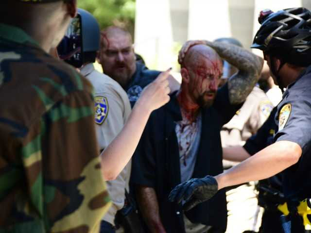 <p>Police escort a wounded man away from in front of the Capitol in Sacramento on Sunday after members of right-wing extremists groups holding a rally outside the California state Capitol building clashed with counter-protesters, authorities said.</p>